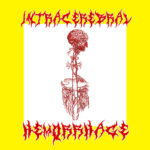 JACOB – Intracerebral Hemorrhage